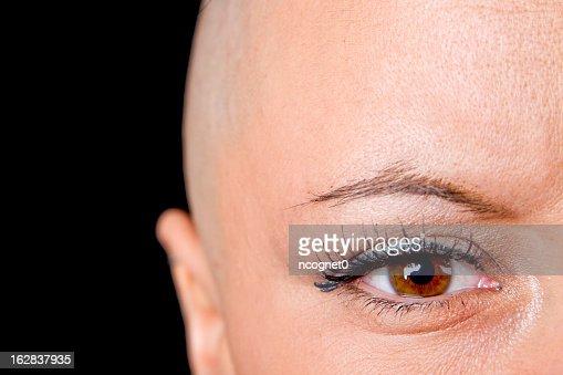 A bald woman who is a cancer survivor