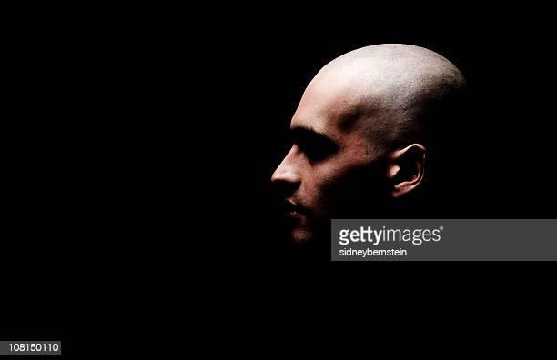 Glatzenbildung MonteChegro