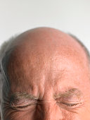 Balding senior man frowning with eyes closed, close-up of forehead