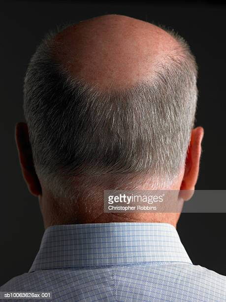 Balding senior man, rear view, head and shoulders