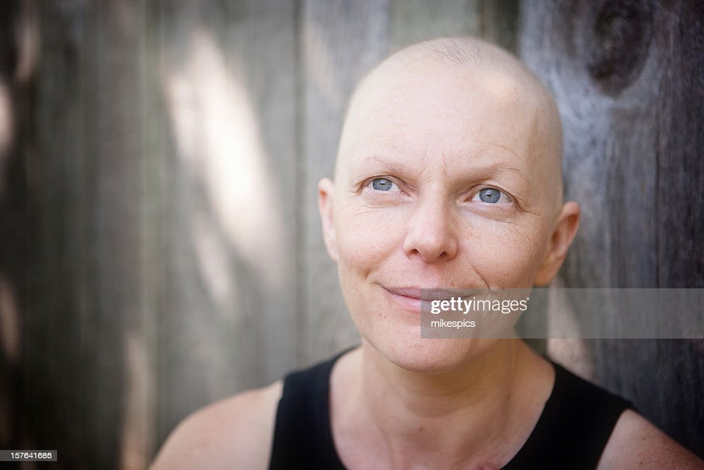 Balding woman fighting breast cancer outdoors looking off camera.