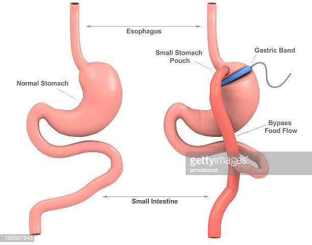 Band Gastric Bypass Surgery (3D)