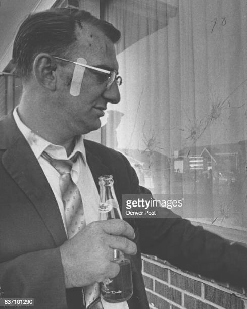 Bandage is on the cheek of Johnson who was wounded by a shotgun blast fired by a shotgun blast fired by William J Maguire Credit Denver Post