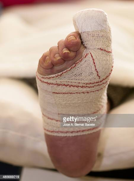 Bandaged Toe accident