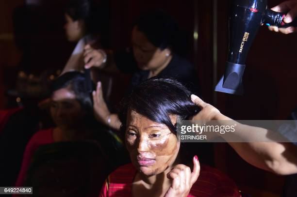 A Bangladeshi acid attack survivor has her hair done backstage prior to the fashion show 'Beauty Redefined' by designer Bibi Russell featuring acid...