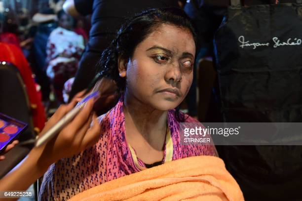 A Bangladeshi acid attack survivor has her makeup done backstage prior to the fashion show 'Beauty Redefined' by designer Bibi Russell featuring acid...