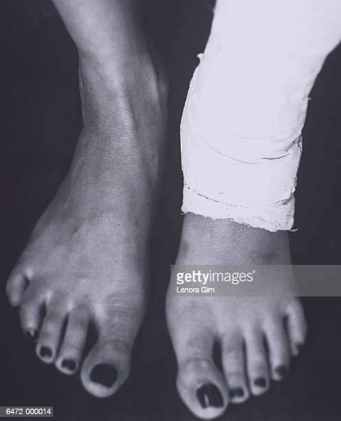 Bare Feet with Ankle in Cast