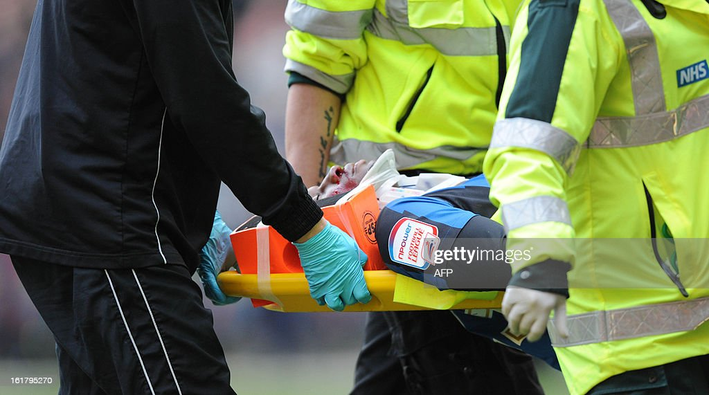 "Barnsley's English midfielder Kelvin Etuhu is taken off on stretcher during the fifth round FA Cup football match between MK Dons and Barnsley at the MK Stadium in Milton Keynes on February 16, 2013. Barnsley won the game 3-1. USE. No use with unauthorized audio, video, data, fixture lists, club/league logos or ""live"" services. Online in-match use limited to 45 images, no video emulation. No use in betting, games or single club/league/player publications."
