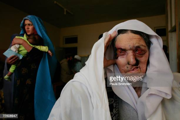 Bas Bibi 70 years old waits to be seen at a special clinic to help cleft lip and palate patients at the CURE International hospital in Kabul...