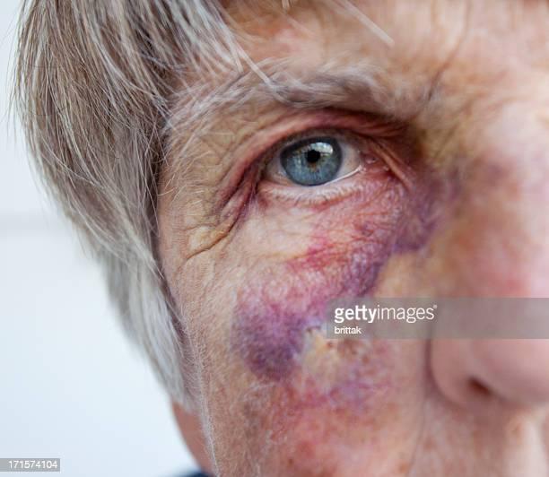 Battered senior woman. Close up of black eye.
