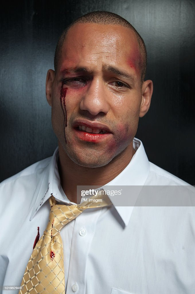Beat Up Businessman Stock Photo