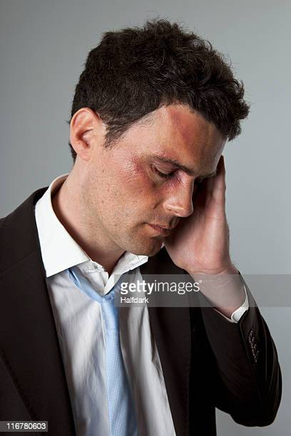 Black Eye Stock Photos And Pictures