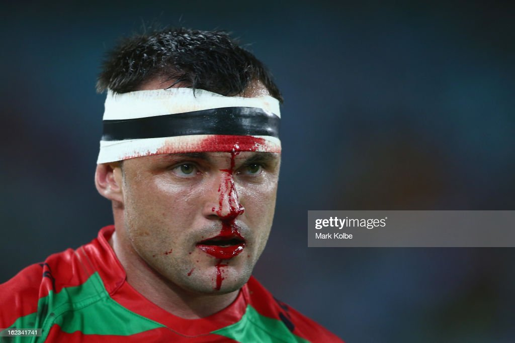 Beau Champion of the Rabbitohs leaves the field with blood coming from a head wound during the NRL Charity Shield match between the South Sydney Rabbitohs and the St George Illawarra Dragons at ANZ Stadium on February 22, 2013 in Sydney, Australia.