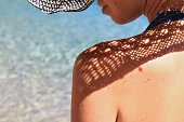 Beautiful Woman with birthmarks on her back and face. Attractive female wearing straw hat on the beach