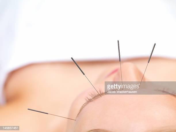 Bellissima giovane donna ottenere trattamento di agopuntura