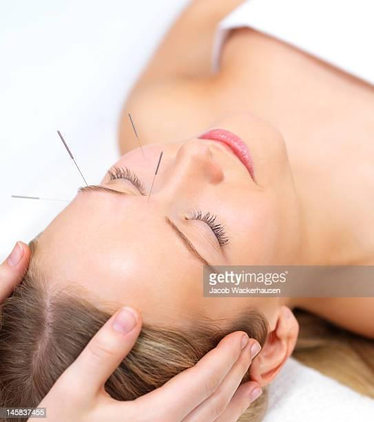 Bellissima giovane donna con gli occhi chiusi ricevere la terapia di agopuntura