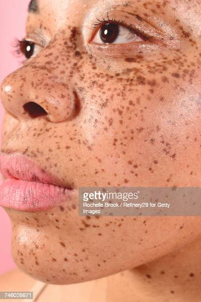 Beauty Portrait of Young Confident Woman with Freckles