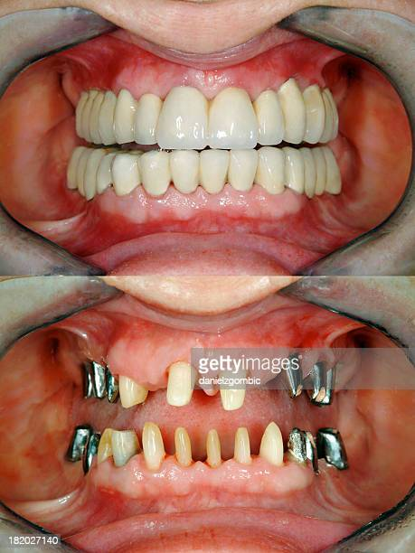 Before & After  Full Dental Reconstruction