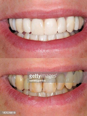 Before & After Smile Design