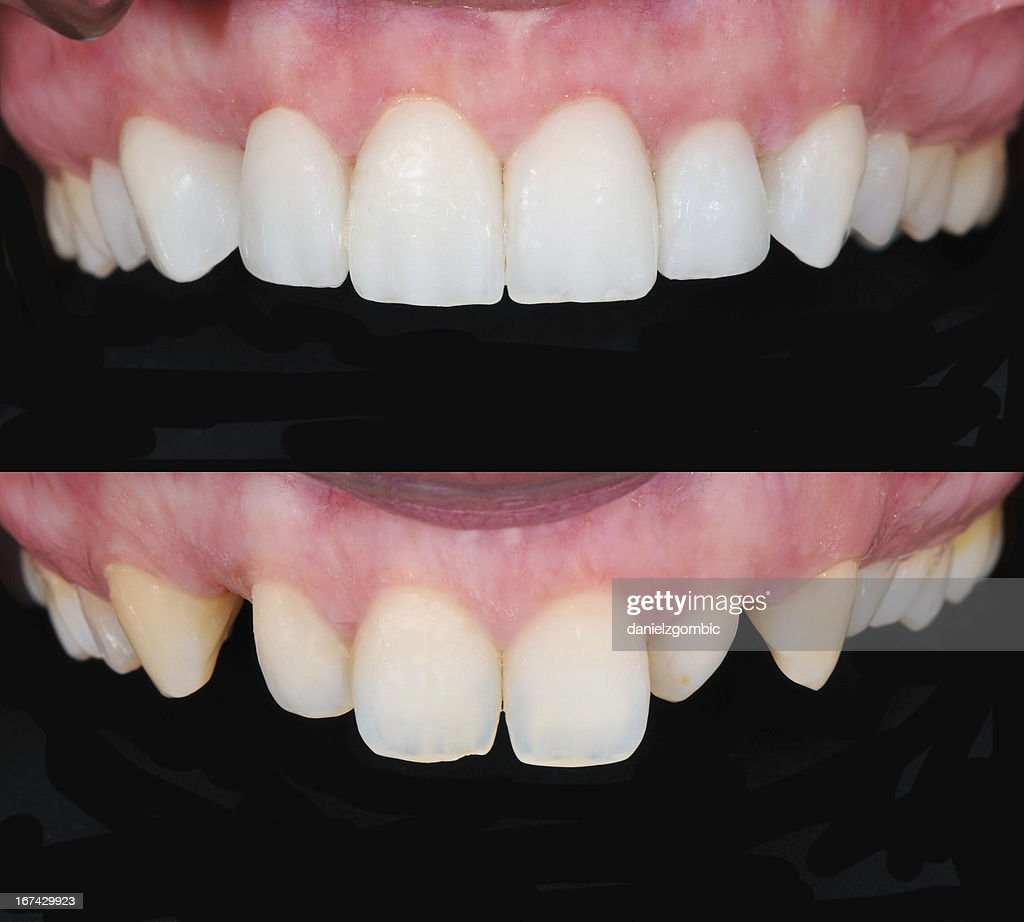 Antes de & depois de sorrir modelo : Foto de stock