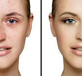Female face acne and with  perfect skin, cut in half to present before and after  fresh daily make-up.  Removing skin imperfections using make-up.