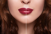 women with lips injection
