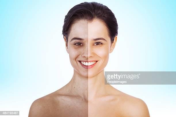 Vor und nach