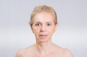 Blonde mid aged woman in before and after skin treatment shot