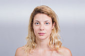 Blonde woman in before and after skin treatment compare