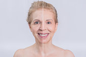 Blonde mid aged woman smiling in a face transformation before and after shot