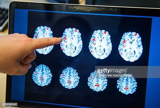 Benny Liberg points on a brain scan showing the brain activity of a paedophile man at the Huddinge hospital southwest of Stockholm on April 15 2016...