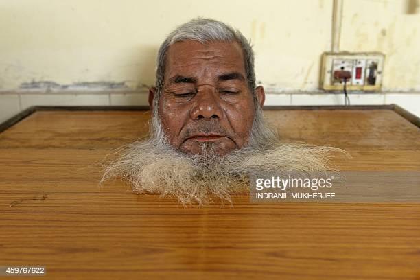 Bhopal gas disaster survivor Akbar Khan sits inside a steam box as part of their rehabilitation using traditional Ayurvedic treatment at the...