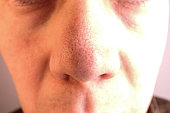 A man with big pores and blackheads on his nose.