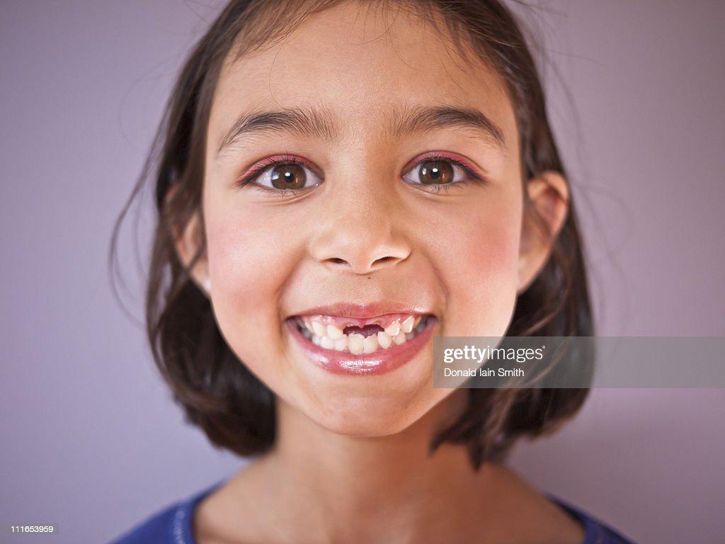 Big smile, baby teeth gone