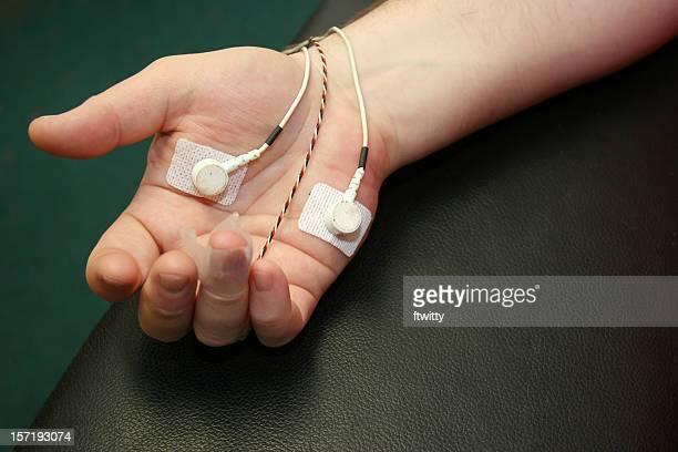 Biorretroalimentación mano
