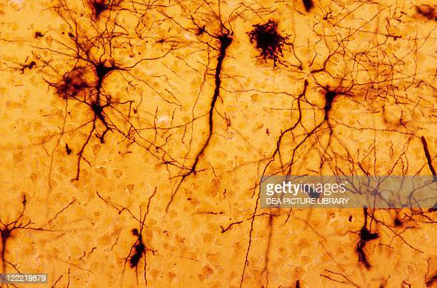 Biology Anatomy Human Histology Nervous tissue pyramidal cells of the brain