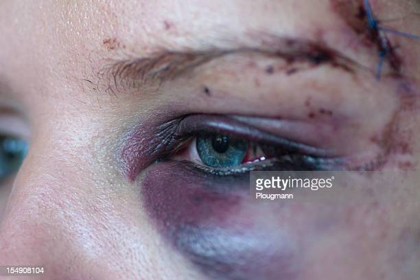 Black eye and sutures