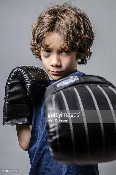 Black eye boxer kid boy