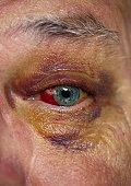 Black Eye close-up