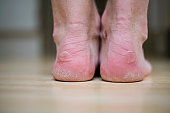 Blisters on two heels