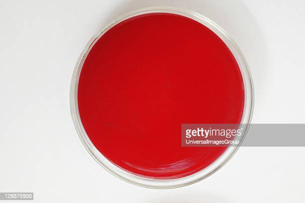 Blood agar medium Blood agar plate usually contain ~5% mammalian blood must likely to be sheeps blood The plate is used to cultivate fastidious...