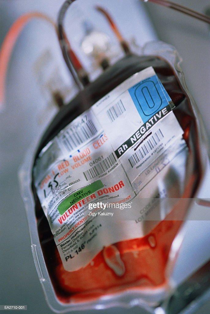 Blood bag containing O type, Rh (Rhesus) negative blood : Stock Photo