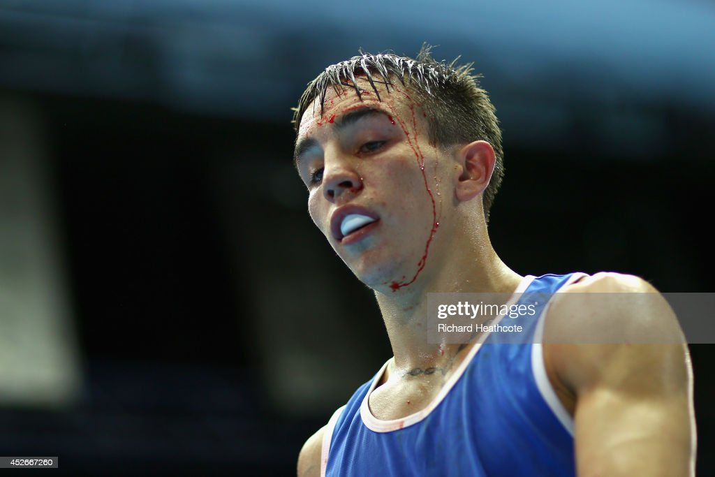 Blood pours from a cut on <a gi-track='captionPersonalityLinkClicked' href=/galleries/search?phrase=Michael+Conlan&family=editorial&specificpeople=3018646 ng-click='$event.stopPropagation()'>Michael Conlan</a> of Northern Ireland in the Men's Bantam 56kg preliminaries at Scottish Exhibition And Conference Centre during day two of the Glasgow 2014 Commonwealth Games on July 25, 2014 in Glasgow, United Kingdom.