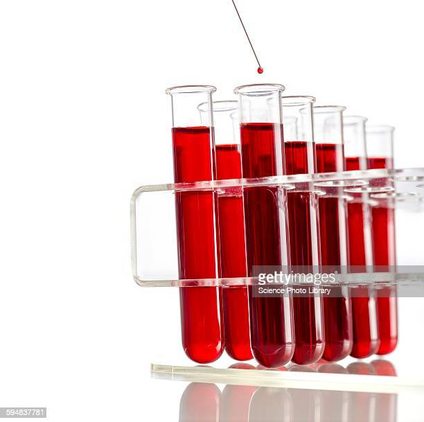 Blood sample and test tubes