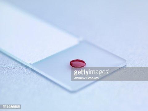 Blood sample on microscopic slide