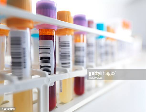 Blood samples in rack