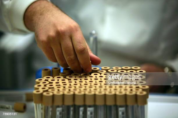 Blood samples taken from volunteers are labelled and ready to be stored in the UK Biobank which will hold up to 15 million urine and blood samples...