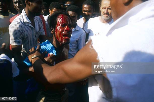 Blood streams down the face of an injured man at Guy Malary International Airport in PortauPrince Haiti where a crowd has gathered to prevent...