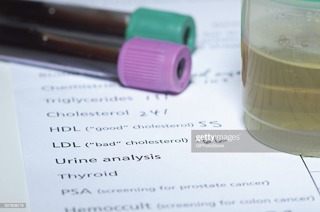 Blood tubes and urine sample on the results of tests done as part of a yearly health checkup, including tests for cholesterol