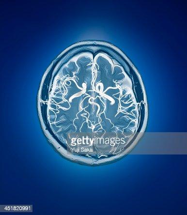 blood vessel with human brain MRI
